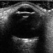 USG gałki ocznej